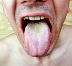 Candidiasis-Candida Overgrowth on Tongue